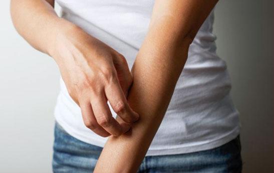 عفونت های انگلی پوست