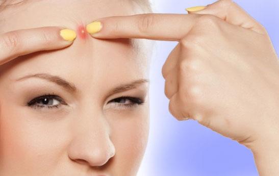 درمان جوش های روی پیشانی