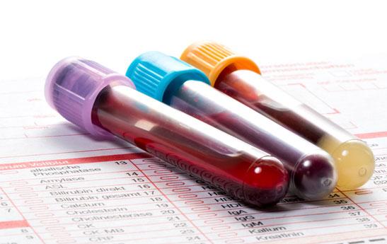 همه چیز درباره آزمایش خون