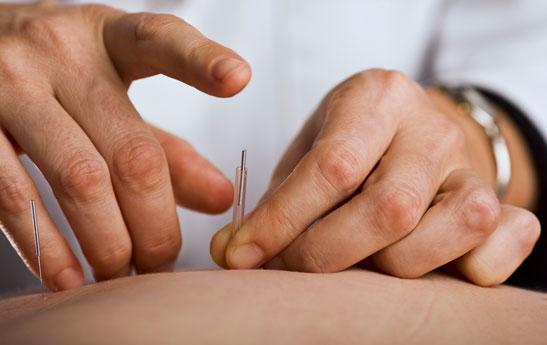 فواید طب سوزنی در درمان نقرس