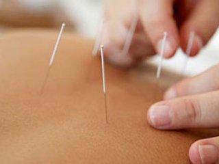 مقايسه اثربخشی طب سوزنی با ايبوپروفن در كاهش درد استئوآرتريت زانو