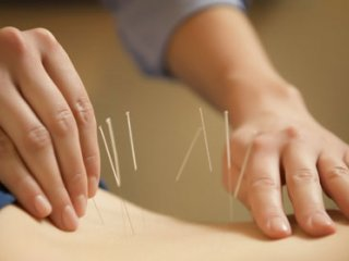 تفاوتهای طب سوزنی با طب مدرن- قسمت دوم