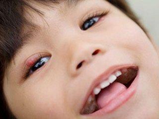 گل مژه؛ عفونتی رايج در کودکان