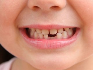 تغییر رنگ دندانها در اثر مصرف قطره آهن