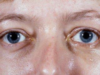 تیروئید چشمی(2)