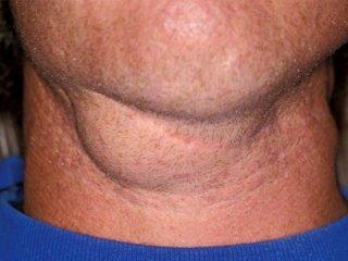 بیماری های غدد لنفاوی گردن را بشناسیم (1)