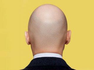 آیا كاندید مناسبی برای پیوند مو هستید؟
