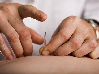 طب سوزنی، شاخهای از طب کل نگر (2)