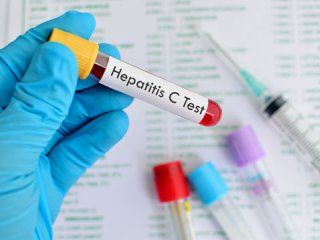 هپاتیت C؛ پیشگیری و درمان (2)