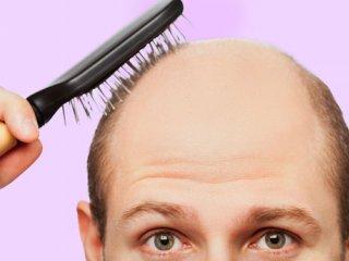 سیگاریها در خطر ریزش مو و طاسی