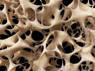 تشخیص استئوپروز (1)