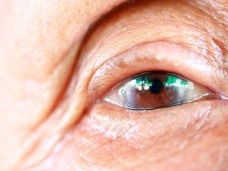 آب مروارید در سالمندان