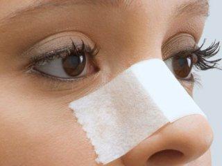 انواع عوارض جراحی بینی