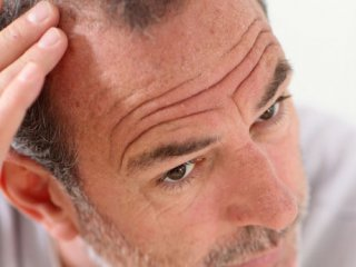 آیا استرس موها را سفید میکند؟