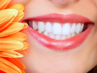 لبخند زیبا با دندان های سالم