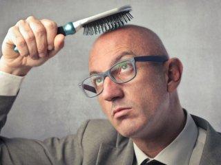 ریزش مو از زبان دکتر نیلفروش زاده