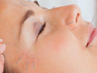 کاربرد طب سوزنی در زیبایی و جوانسازی پوست و مو