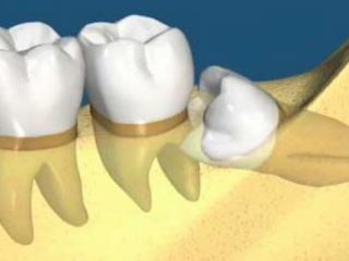 منظور از دندان نهفته چیست
