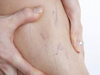 طب سوزنی و درمان واریس