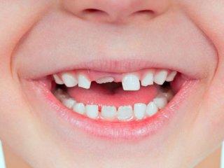 به دندانهای شیری بها بدهید