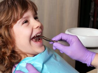 فلوراید درمانی در بچه ها؛ خوب یا بد؟!