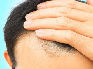 بسته موضوعی 109: ریزش مو، از علل تا درمان