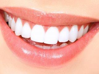 راه ارزان جرم گیری و سفید کردن دندانهادر خانه