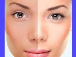 وقتی پوست رنگ عوض می کند