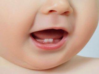 دندان شیریهم نیاز به درمان دارد