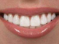 دانستنی های مهم درباره لامینت دندان