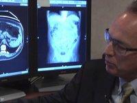 نگاهی به بایدها و نبایدهای سی تی کولونوگرافی (1)