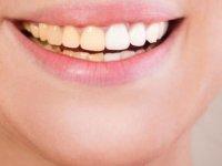 شكستگیهای ساده تاج و تاج ریشه در دندانهای دائمی (1)
