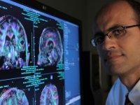 تومورهای مغزی (1)