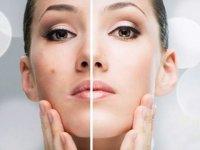 چند گام به سوی جوانسازی چهره