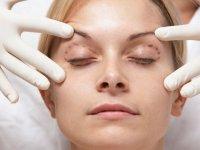 جوانسازی چشم با جراحي پلاستيك و زيبايي پلك