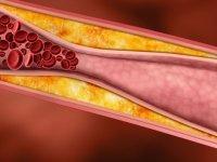 توصیه های مفید برای درمان آترواسكلروز