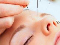 کاربرد طب سوزنی در جوانسازی پوست و مو