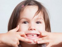 روکش دندان شیری چیست؟