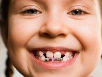 اهمیت ارتودنسی پیشگیری در کودکان