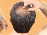 اثرات کمپلکس کافئین در جلوگیری از ریزش موی ارثی