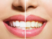 بهترین راهکار برای زیبایی دندان ها