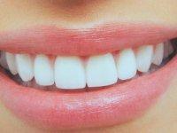 دندان های سفید و زیبا