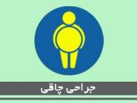 جراحي چاقی