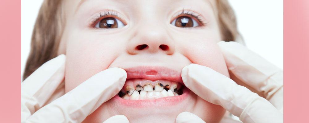 به دندان های شیری بها بدهید