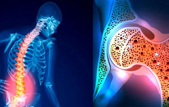 پوکی استخوان در زنان بیشتر از مردان