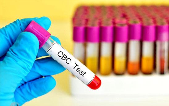 نتایج آزمایش خون خود را تفسیر کنید