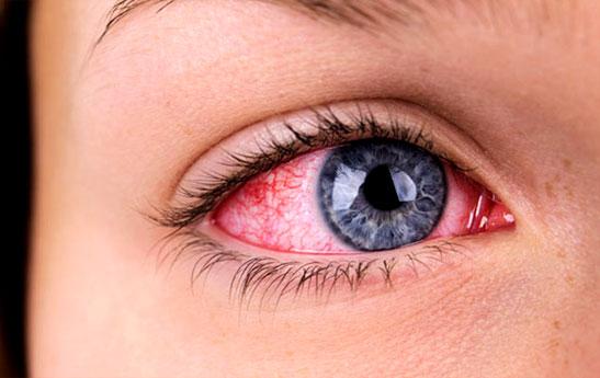 آیا ممکن است از طریق چشم به کرونا مبتلا شد؟