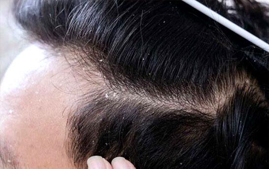داروهای خانگی برای درمان شوره سر