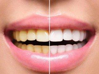 چرا رنگ دندان ها تغییر می کند؟