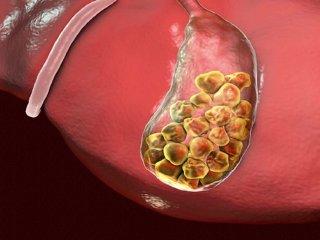 """علائم """"سنگ کیسه صفرا"""" چیست + راهکار درمانی طب سنتی"""